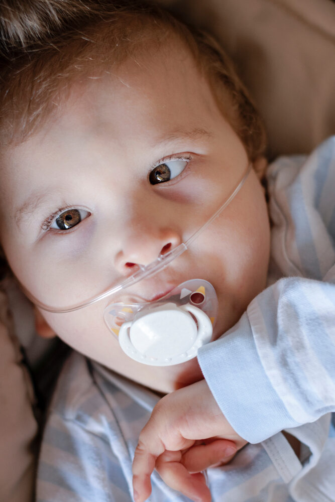 baby,boy,with,cerebral,palsy,is,getting,oxygen,via,nasal